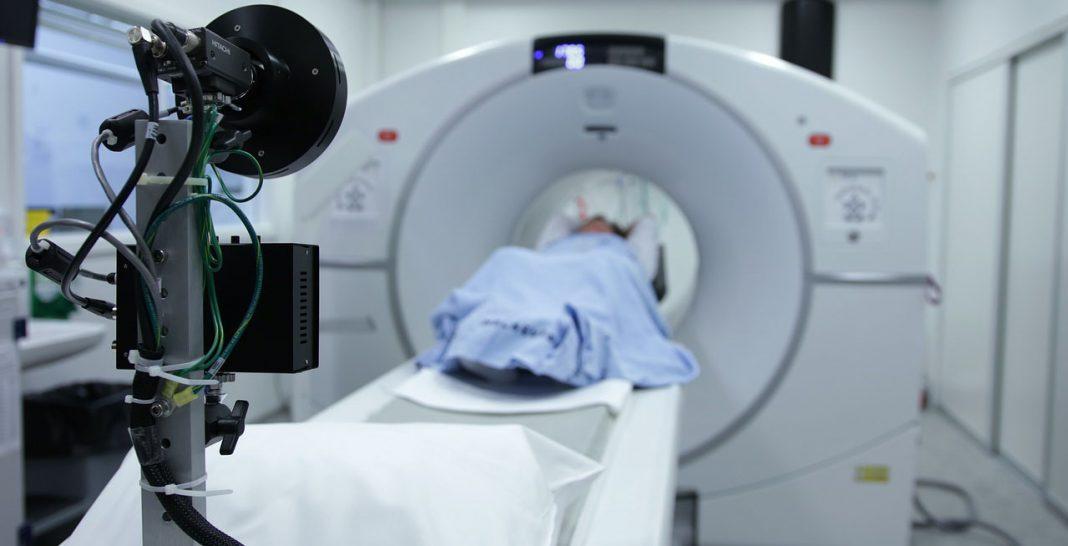Wie wird Lungenkrebs festgestellt?