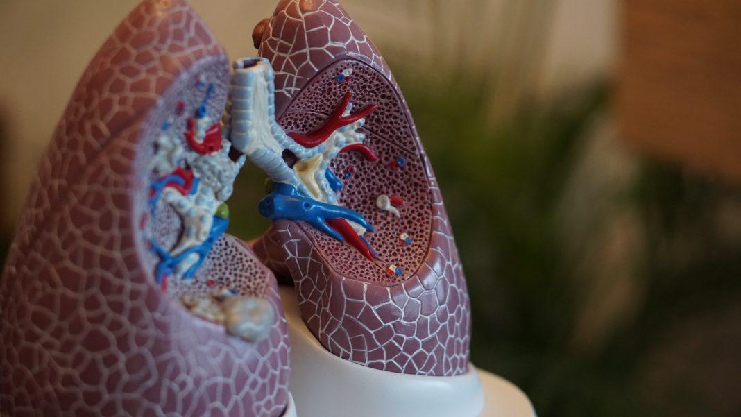 Lungenkrebs, Foto: Robina Weermeije, Unsplash