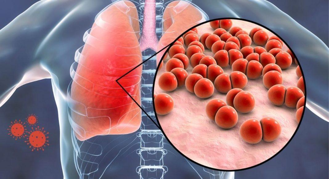 Illustration Lungenentzündung durch Pneumokokken verursacht, Credit Canva